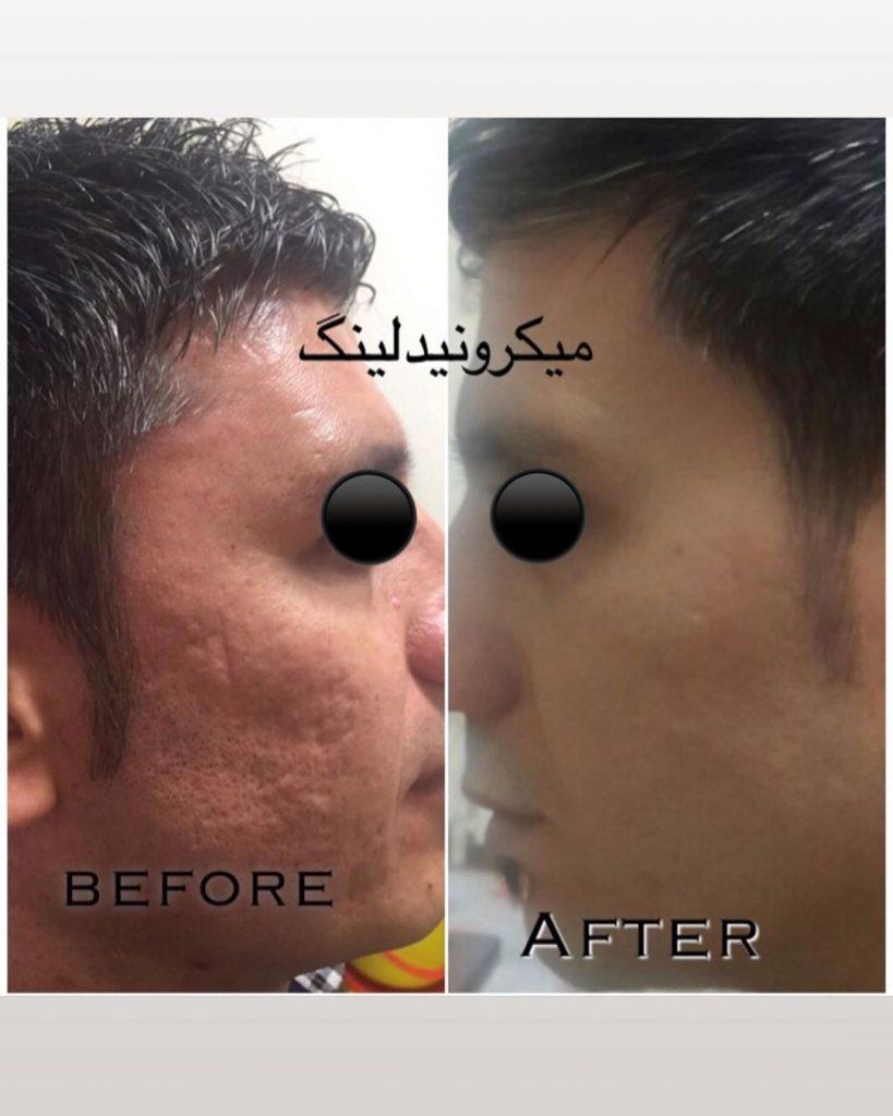قبل و بعد از جوانسازی و پاکسازی پوست با دستگاه برای ازبین بردن جای جوش