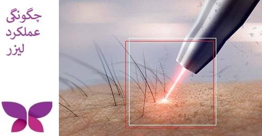 چگونهگی عملکرد لیزر فرکشنال