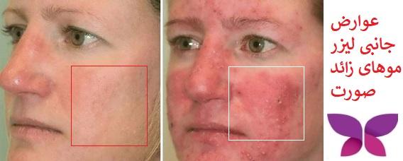 عوارض جانبی لیزر موهای صورت