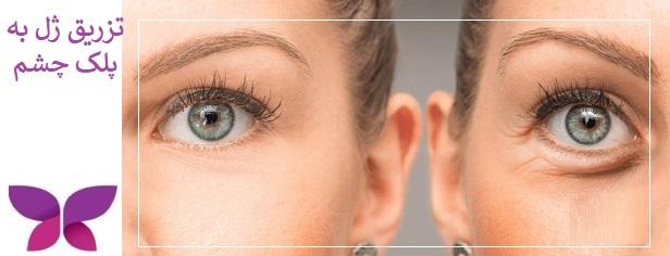 تزریق ژل به پلک چشم