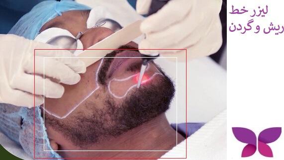 مراحل لیزر موهای خط گردن و ریش