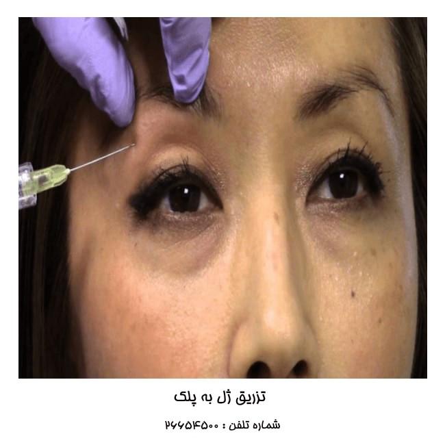 تزریق ژل به پلک
