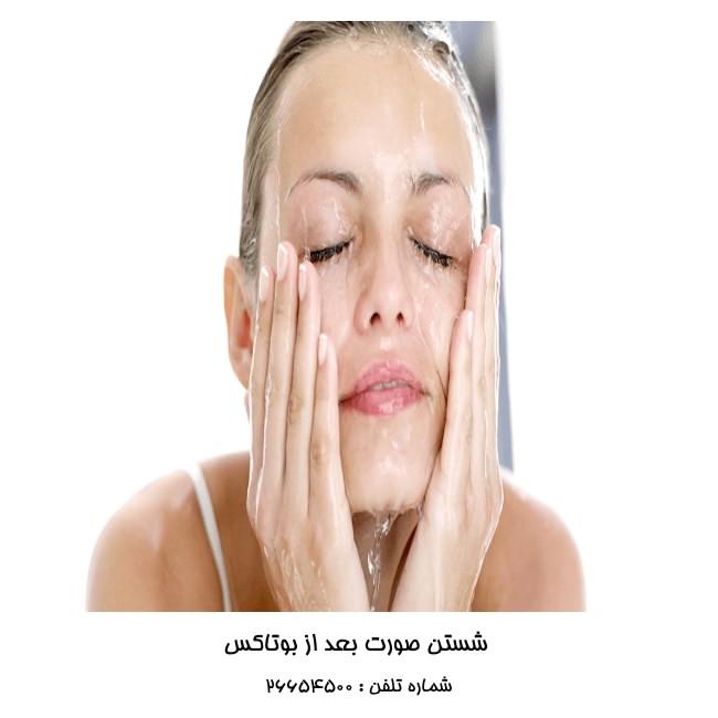 شستن صورت بعد از تزریق بوتاکس