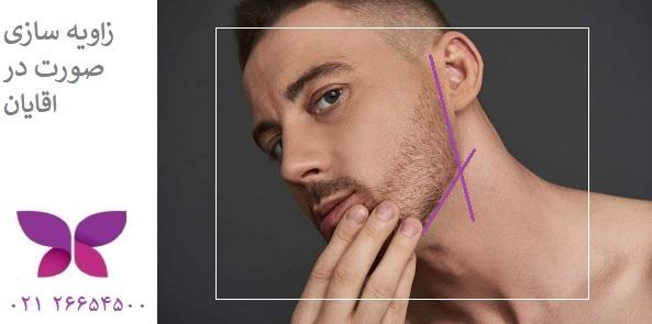 زاویه دار کردن صورت مردان با تزریق ژل