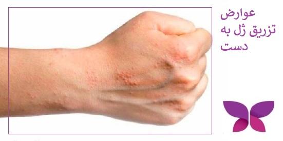 ارض تزریق ژل به دست برای جوانسازی پوست