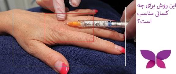 تزریق ژل به دست برای جوانسازی پوست