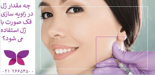 چه مقدار ژل در زاویه سازی فک صورت با ژل استفاده می شود؟
