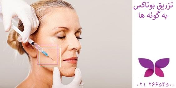 تزریق بوتاکس به گونه و سفت شدن پوست آن