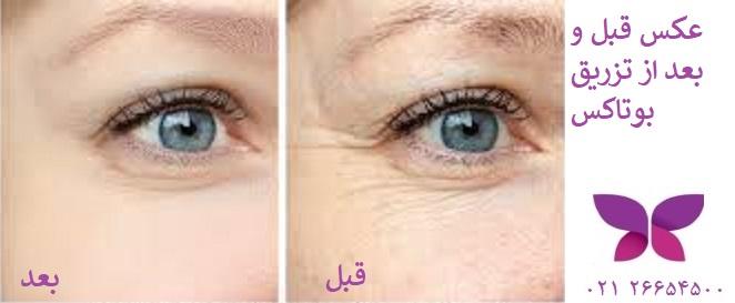 عکس قبل و بعد از تزریق بوتاکس