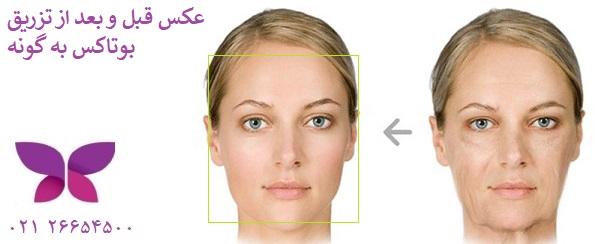 عکس قبل و بعد از سفت شدن پوست گونه با بوتاکس