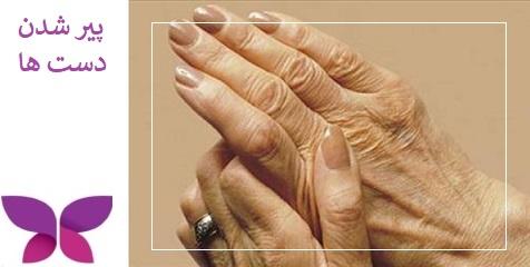 پیری دست ها