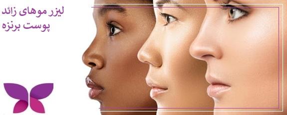 میزان ماندگاری لیزر موهای زائد