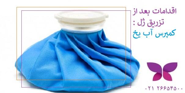 اقدامات بعد از تزریق ژل در تهران